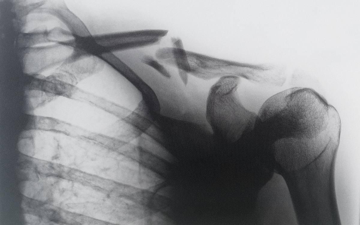 Schulter-Nacken-Verspannungen mit Übungen auflösen